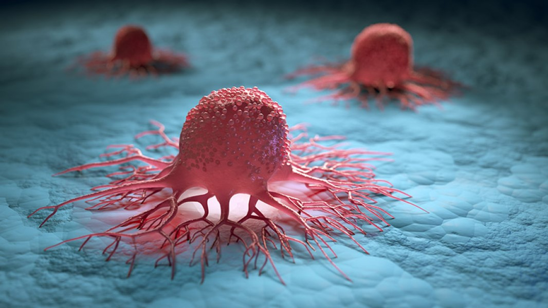 3D tumour modelling steps up battle against cancer